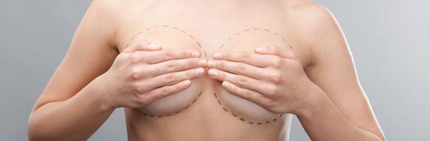 Clinique-du-lac-Aix-les-Bains-Ptose-mammaires
