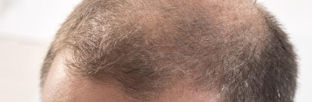 Greffe de cheveux calvitie