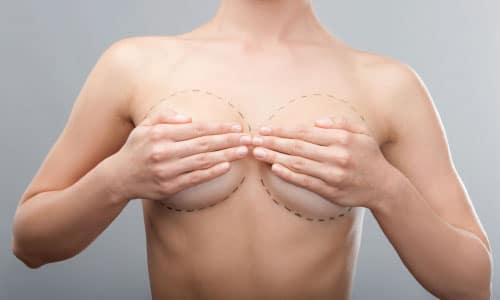 Aix les bains la pose mammaire