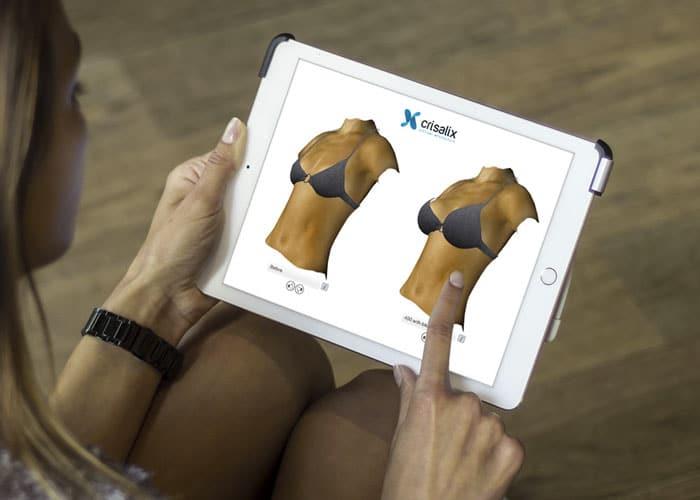 Votre consultation 3D